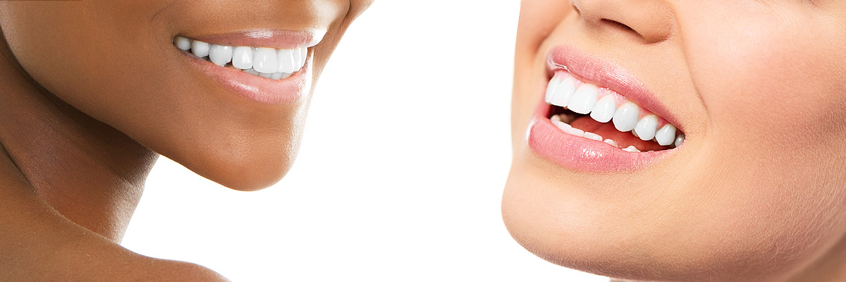 teeth whitening clinic Heston, Hounslow