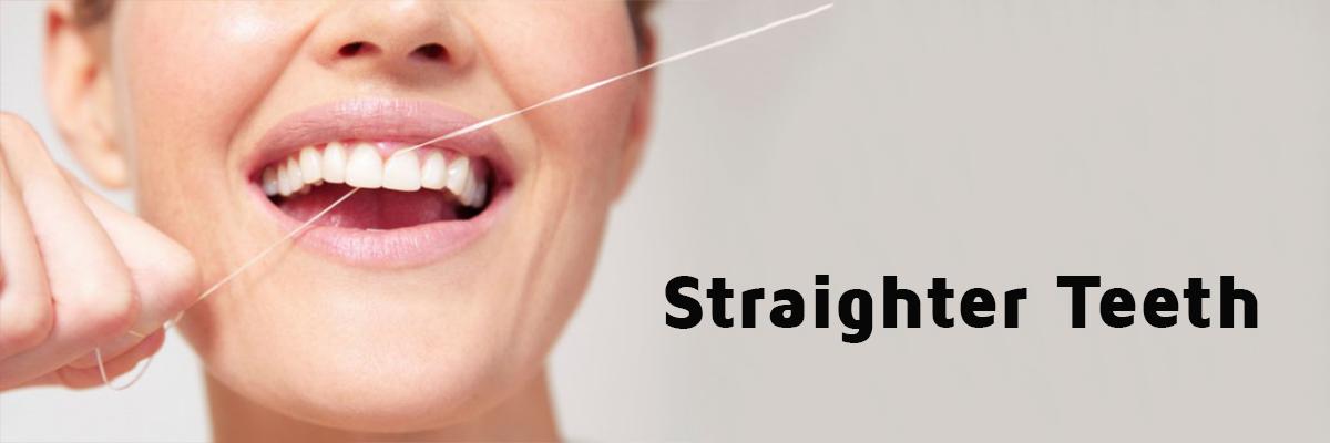 teeth straightening Hounslow