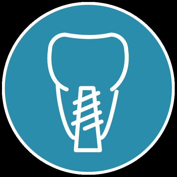 Dental Implants Hounslow