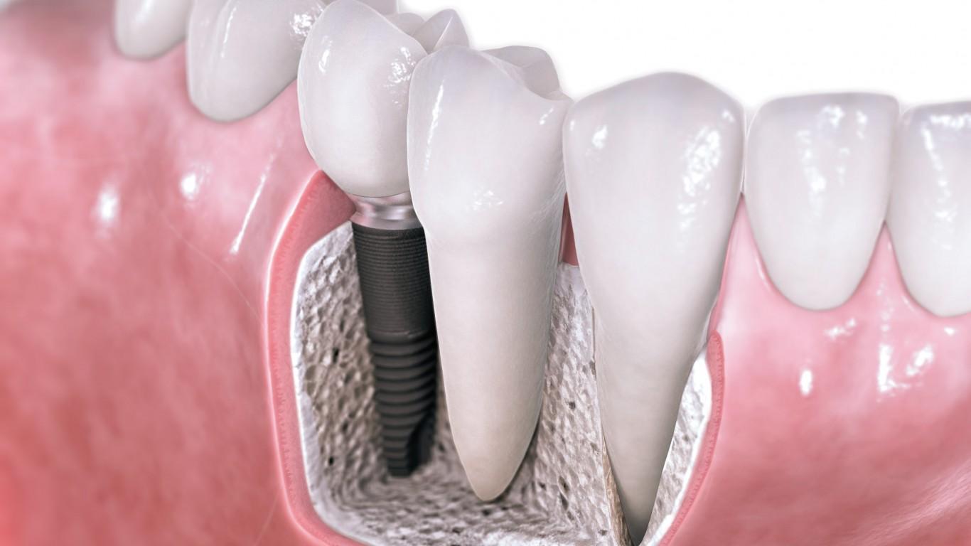 cheap teeth implants Hounslow
