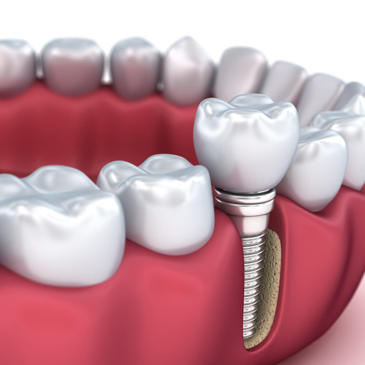 dental implants hounslow