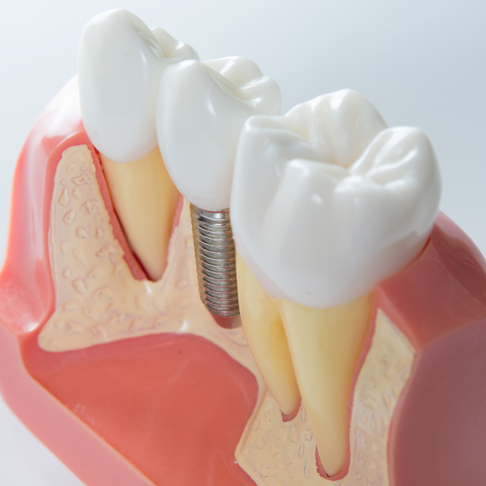 affordable dental implants near me